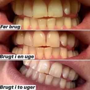 """#reklame  🦷Whitening Fluoride Toothpaste🦷  Har du fået gule tænder ved at drikke for meget ☕️🍷eller har 🚬  ❌SE HER❌  Så smil med selvtillid takket være denne velsmagende Whitening Fluoride Toothpaste, der lysner tænderne mens de modvirker plakdannelse.  Mere info skriv """"JA TAK"""""""