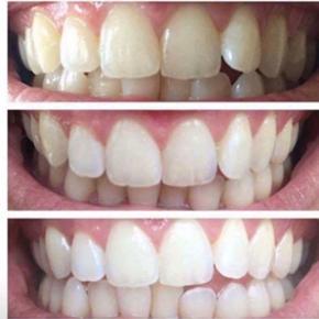 ✨ AP24 WHITENING TOOTHPASTE ✨  Fjerner misfarvninger fra kaffe, cigaratter og alle de farvestoffer som vi indtager, uden at skade emaljen! Samtidigt lægger den patenterede formel en hinde over tænderne, der holder tandsættet glatte og rene hele dagen. Tandpastaen beskytter tænderne mod plak 24timer i døgnet.  FAST PRIS !!